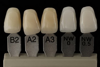 Цвет зубов до и после отбеливания по шкале Vita.